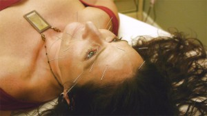 gail 3 acupuncture
